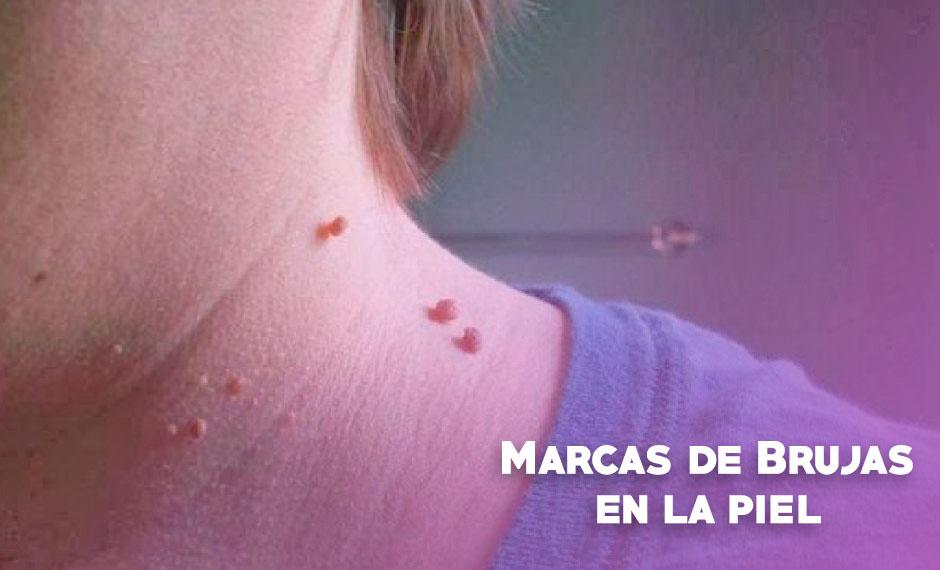 marcas de brujas en la piel